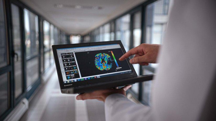 Mesterséges intelligencia segíti a dunántúli stroke hálózatot